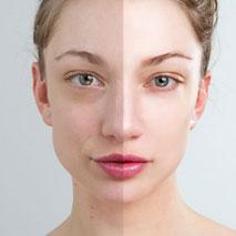Fotoodmladzanie twarzy, szyi i dekoltu