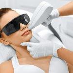 Depilacja laserowa wąsika górna warga (epilacja)