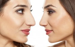 Totalna plastyka nosa z osteotomią