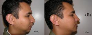 Korekcja garbu nosa - efekty