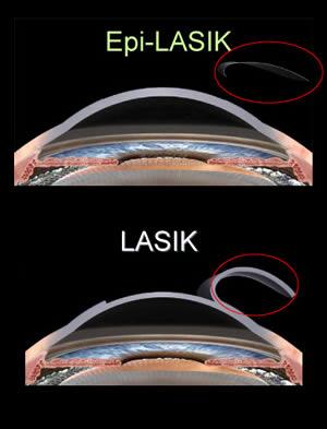 Laserowa korekcja wzroku: Metoda EPI-LASIK / Premium EPI-LASIK