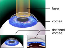 Laserowa korekcja wzroku: Metoda PRK