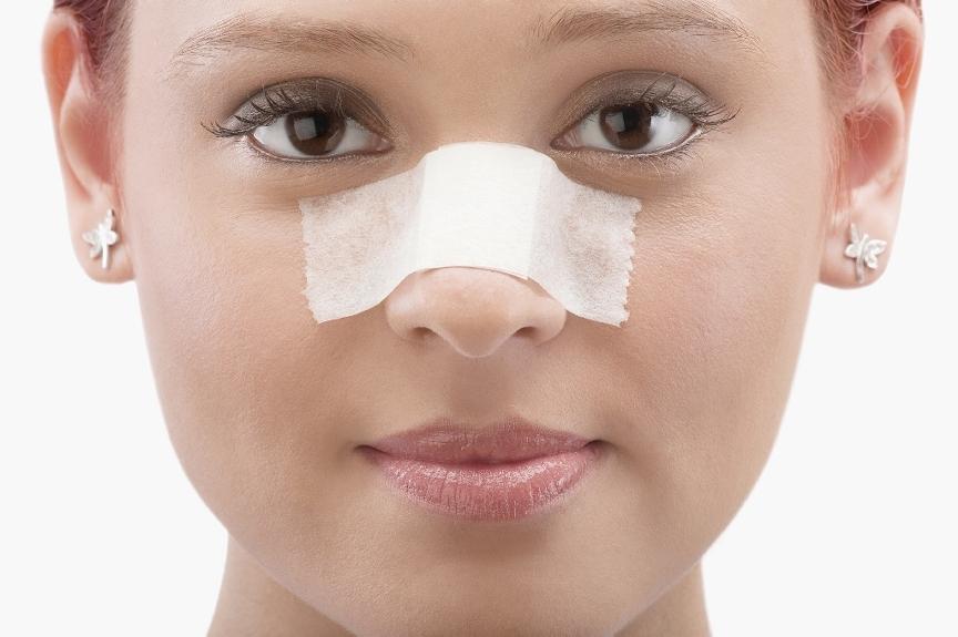 Plastyka nosa z osteotomią