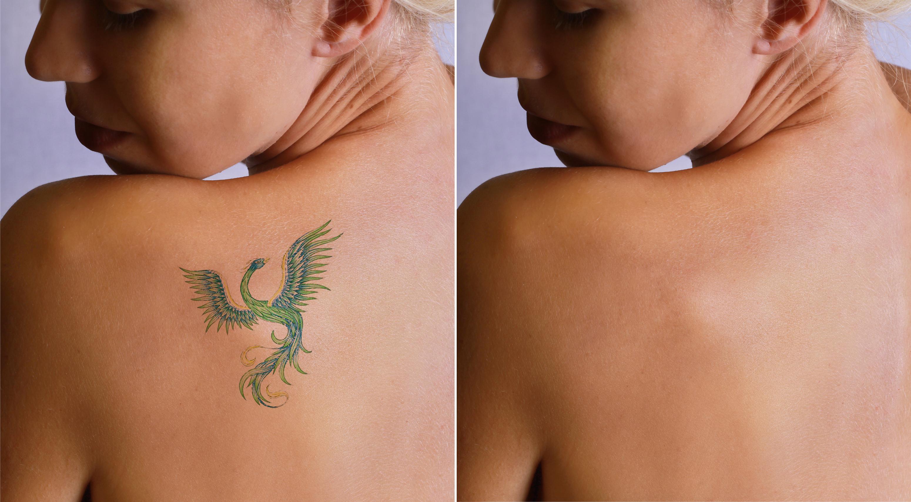 Chirurgiczne Usunięcie Tatuażu Zaufaneklinikipl