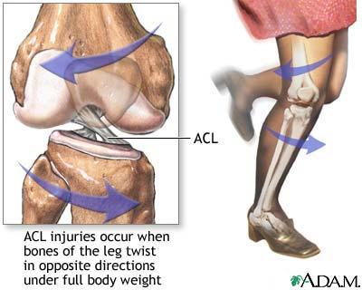 Artroskopowa rekonstrukcja więzadła krzyżowego przedniego lub tylnego
