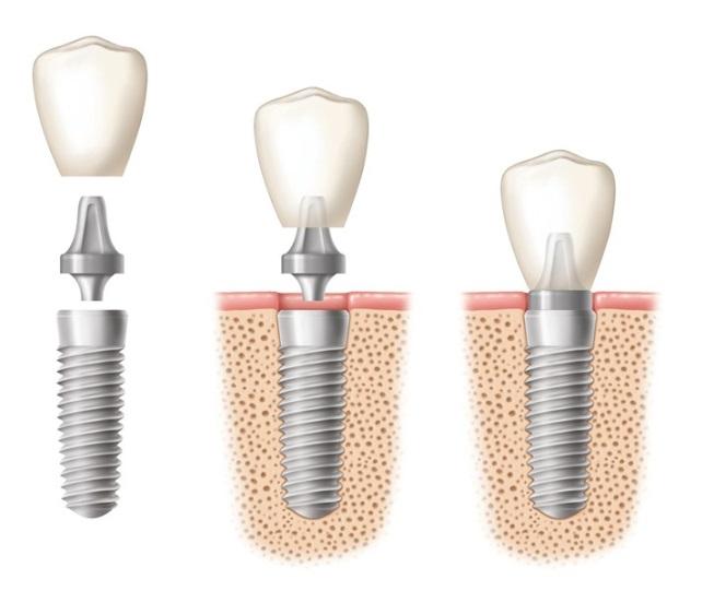 Implanty cylindryczne