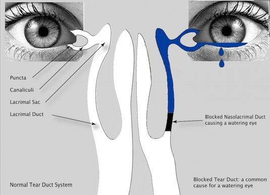 Udrożnianie i płukanie kanalików łzowych