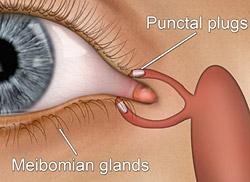 Zatykanie kanałów łzowych zatyczką w przypadku zespołu suchego oka