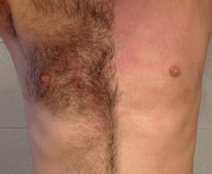 Depilacja laserowa klatki piersiowej