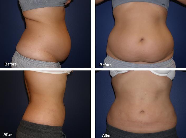 klasyczna liposukcja brzucha