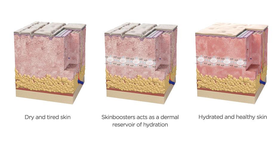 Ujędrnianie kwasem hialuronowym (SkinBooster)