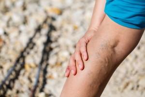 Miniflebektomia (szydełkowanie żył) - operacyjne leczenie żylaków kończyn dolnych