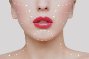 Regeneris - osocze bogatopłytkowe (PRP) twarz (wampirzy lifting)